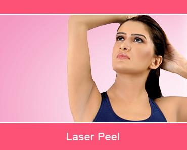 Laser Peel - TLC Dermal Laser Clinic, Surrey, BC, Canada